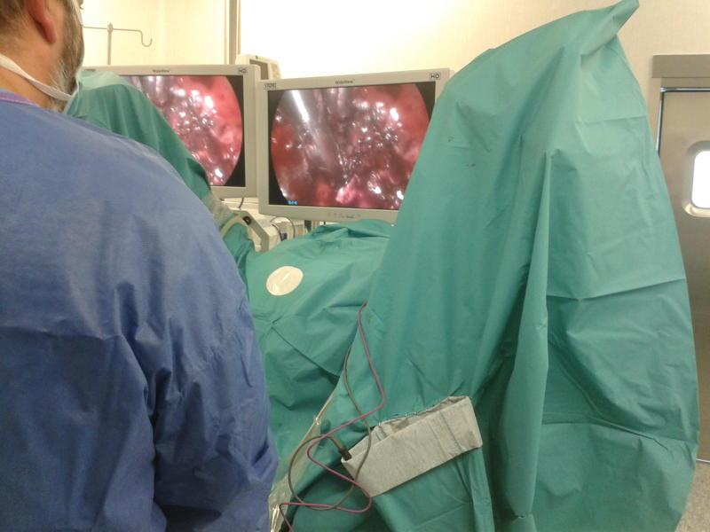 Viernes Quirúrgico: Cáncer de recto en paciente joven