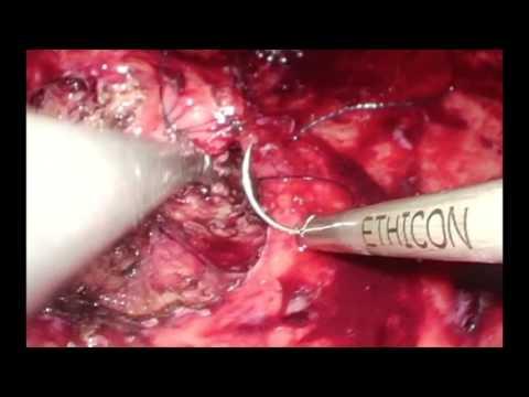 Resección transgástrica laparoscópica de pólipos subcardiales: Viernes Quirúrgico