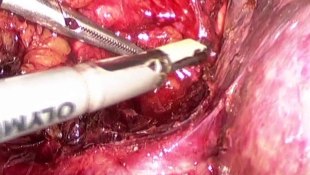 Adrenalectomía laparoscópica por mielolipoma: Viernes Quirúrgico