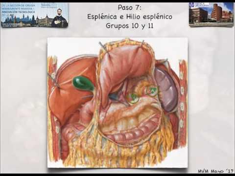 Linfadenectomía D2 laparoscópica en Cáncer gástrico